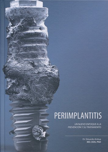 Periimplantitis: Un nuevo enfoque a la prevención y su tratamiento