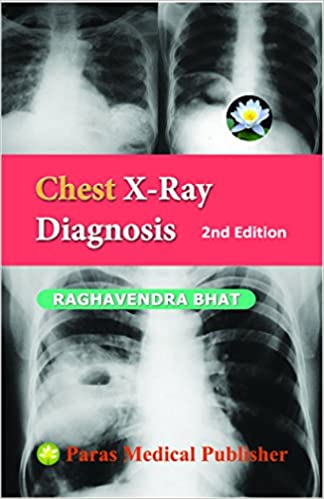 Amazon in: Buy Chest X - Ray Diagnosis 2/Ed Book Online at