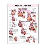 Heart Disease Anatomical Chart 9781587792588