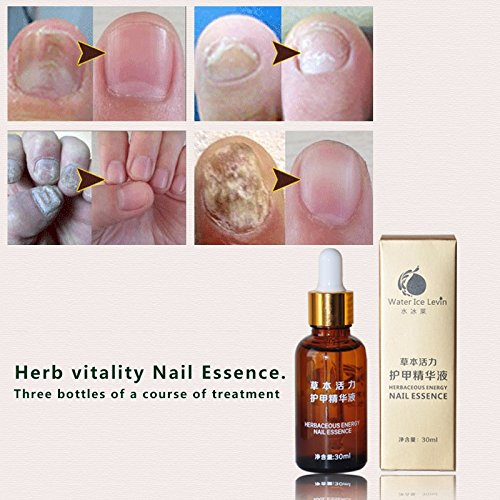 Skymore Nail Essence Herbaceous Energy Repair Nail Recovery by SKYMORE (Image #3)