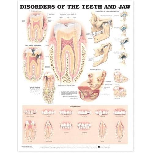 Dental Posters Amazon Com