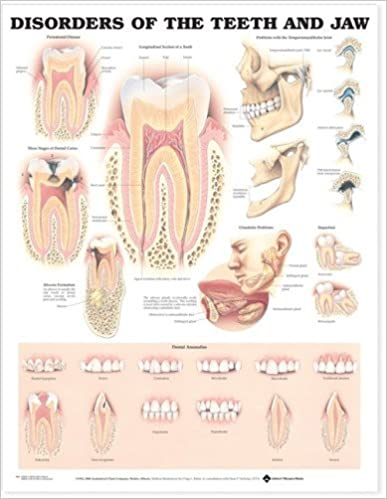 Disorders Of The Teeth And Jaw Anatomical Chart 9781587792502