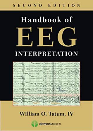 handbook of eeg interpretation 2nd edition pdf tatum wo