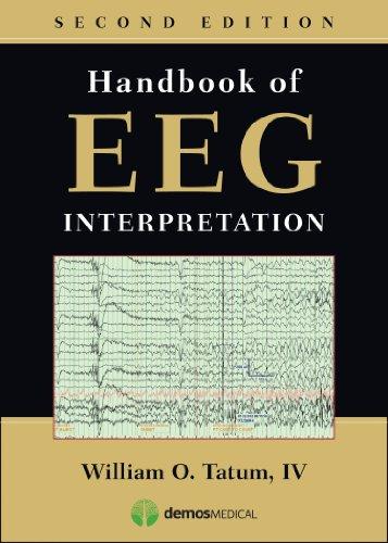Handbook of EEG Interpretation, Second Edition Pdf