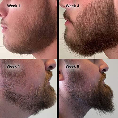 Amazon Com Beard Growth Kit Hair Growth Hair Serum Beard Growth Oil And Beard Roller Hair Growth For Men Stimulate Beard Growth With Our Beard Serum And Growth Roller Beauty