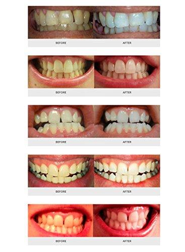 Auraglow Teeth Whitening Kit Led Light 35 Carbamide