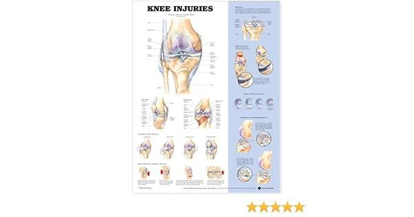 Amazon.com: Knee Injuries Anatomical Chart: Anatomical Chart ...