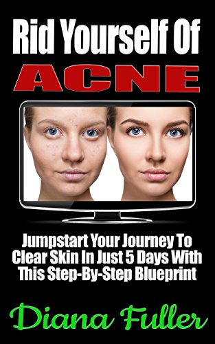 Rid Yourself Of Acne: Jumpstart Your Journey To Clear Skin In Just 5 Days With This Step-By-Step Blueprint