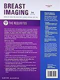 Breast Imaging: The Requisites
