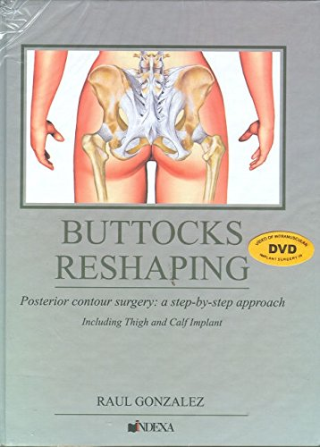 - Buttocks Reshaping: Posterior Contour Surgery: A Step-by-step Approach Including Thigh and Calf Implant