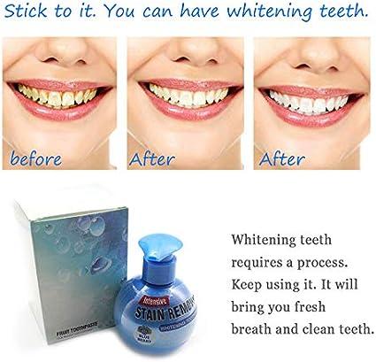 Amosz Intensive Stain Remover Whitening dentifricio Anti Gengive Fresco per Pulire i Denti Mirtillo