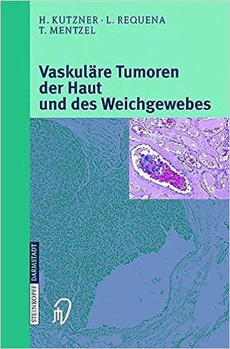 «Vaskuläre Tumoren Der Haut Und Des Weichgewebes»: PDF MOBI 978-3798513808 por H. Kutzner