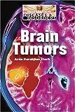 Brain Tumors, Arda Darakjian Clark, 1590186710