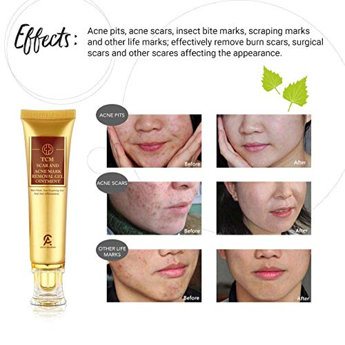 Scar Removal Cream For Old Scars Stretch Mark Removal Gel for Men  Women Stretch Marks Relief and