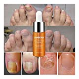 1Pcs Hand and Foot Care Essence,Toe Nail Fungus Removal Gel,Anti Infection Nail Repair Essence Oil (Yellow)