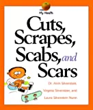 Cuts, Scrapes, Scabs, and Scars, Alvin Silverstein and Virginia B. Silverstein, 0531115828