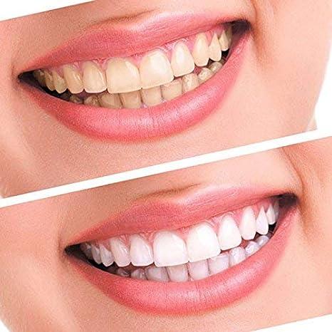歯のホワイトニングするなら、コーヒーお茶・タバコ止めた方がいいかな?