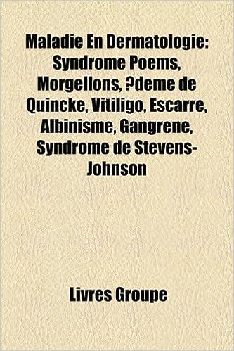 Livre gratuits Maladie En Dermatologie: Syndrome Poems, Morgellons, Deme de Quincke, Vitiligo, Escarre, Albinisme, Gangrene, Syndrome de Stevens-Johnson pdf epub