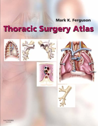 (Thoracic Surgery Atlas)