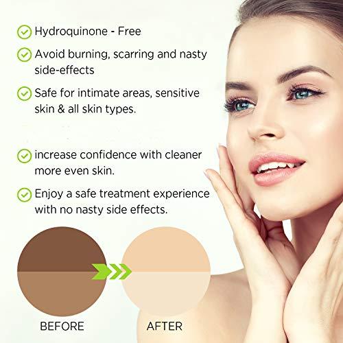 Lightening Serum with Kojic Acid Dark Spot Corrector Remover for Face  Body Natural Gentle Skin