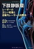 下肢静脈瘤 レーザーの正しい知識と血管内レーザーの治療法