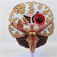 LXX Medical Human Brain Anatomical Model - Human Brain Disease Model - Brain Pathologies...
