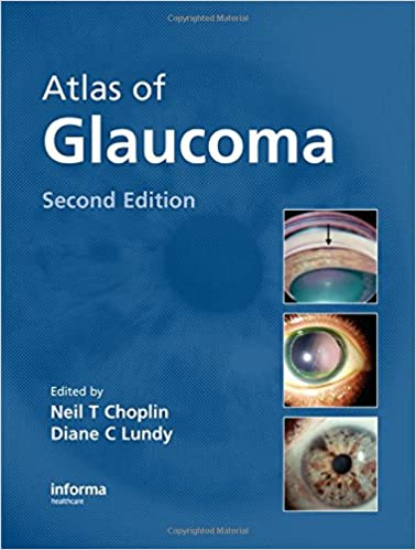 Book Atlas of Glaucoma, 2nd Edition