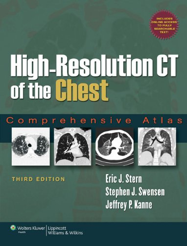 High-Resolution CT of the Chest: Comprehensive Atlas by Brand: Lippincott Williams Wilkins