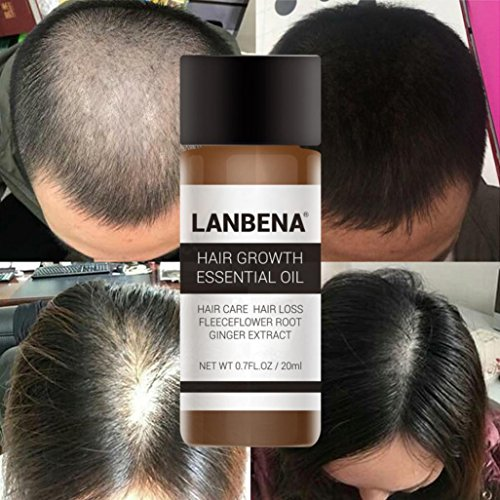 InKach Hair Growth Serum - Hair Growing Essence Oil Thicker - Hair Loss Thinning Supplement (Black)
