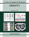Obesity, B. S. Aditya and J. P. H. Wilding, 1846920272