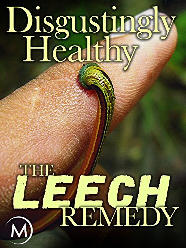 Disgustingly Healthy: The Leech ...
