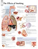 The Effects of Smoking chart takes a look at the problems and risk factors associated with smoking. Topics that are covered by graphics and text include stroke, oral cancer, COPD, heart disease and women?s health issues. Heavy gauge 3ml lamination wi...