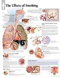 Effects of Smoking chart: Laminated Wall Chart