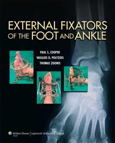 Download By Dr. Paul Cooper External Fixators of the Foot and Ankle (1st First Edition) [Hardcover] pdf