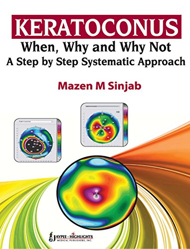 Keratoconus: When, Why and Why Not-A Step-by-Step Systematic Approach Pdf