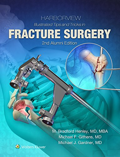 Harborview Illustrated Tips and Tricks in Fracture Surgery - http://medicalbooks.filipinodoctors.org