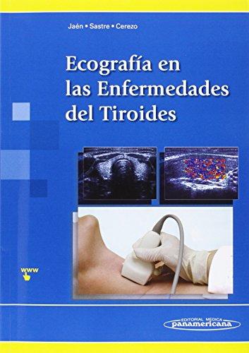 Descargar Libro EcografÍa En Las Enfermedades Del Tiroides JaÉn/sastre/cerezo