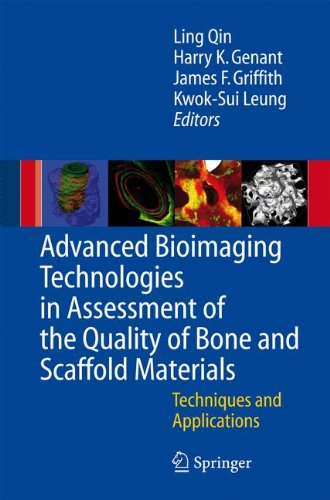 Advanced Bioimaging Technologies in Assessment of the Quality of Bone and Scaffold Materials: Techniques and Application