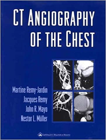 CT Angiography of the Chest