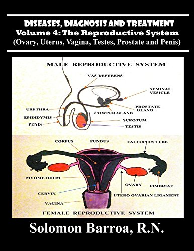 Read Online Diseases, Diagnosis and Treatment (The Reproductive System) (Volume 4) pdf