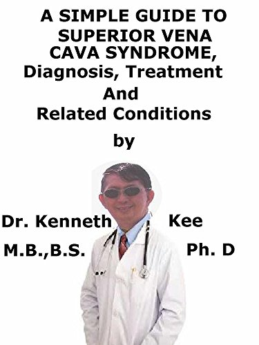 A  Simple  Guide  To  Superior Vena Cava Syndrome,  Diagnosis, Treatment  And  Related Conditions (A Simple Guide to Medical Conditions)