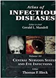 Central Nervous System and Eye Infections 9780443077005