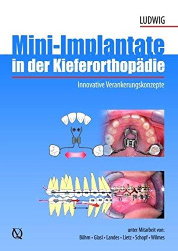 Mini-Implantate in der Kieferorthopädie