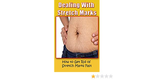 Amazon com: Dealing With Stretch Marks: How to Get Rid of Stretch