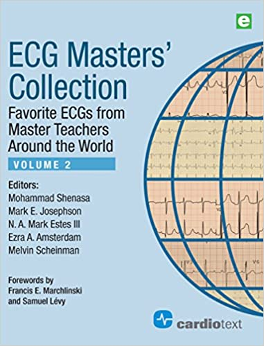 ECG Masters' Collection, Volume 2: Favorite ECGs from Master Teachers Around the World 1st Edition 51QL4phLf2L._SX379_BO1,204,203,200_