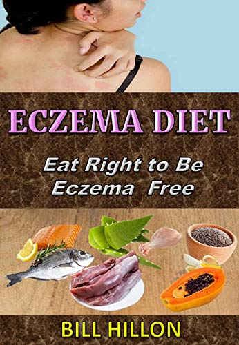 ECZEMA DIET: Eat Right to Be Eczema Free