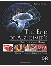 The End of Alzheimer's: The Brain and Beyond