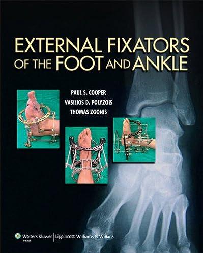 The foot ebook array amazon com external fixators of the foot and ankle ebook paul rh amazon com fandeluxe Gallery