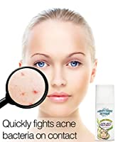 Acne Serum Spot Treatment - Quickly fights acne causing bacteria on spot to treat acne breakouts, pimples, whiteheads and blackheads. Dissolves away pore clogging oils without over drying your skin. by Beauty Facial Extreme