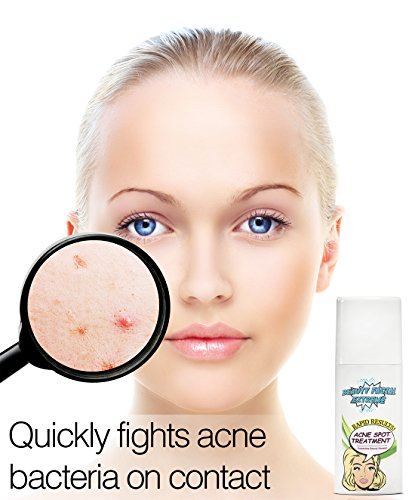 Acne Serum Spot Treatment - Quickly fights acne causing bacteria on spot to treat acne breakouts, pimples, whiteheads and blackheads. Dissolves away pore clogging oils without over drying your skin.